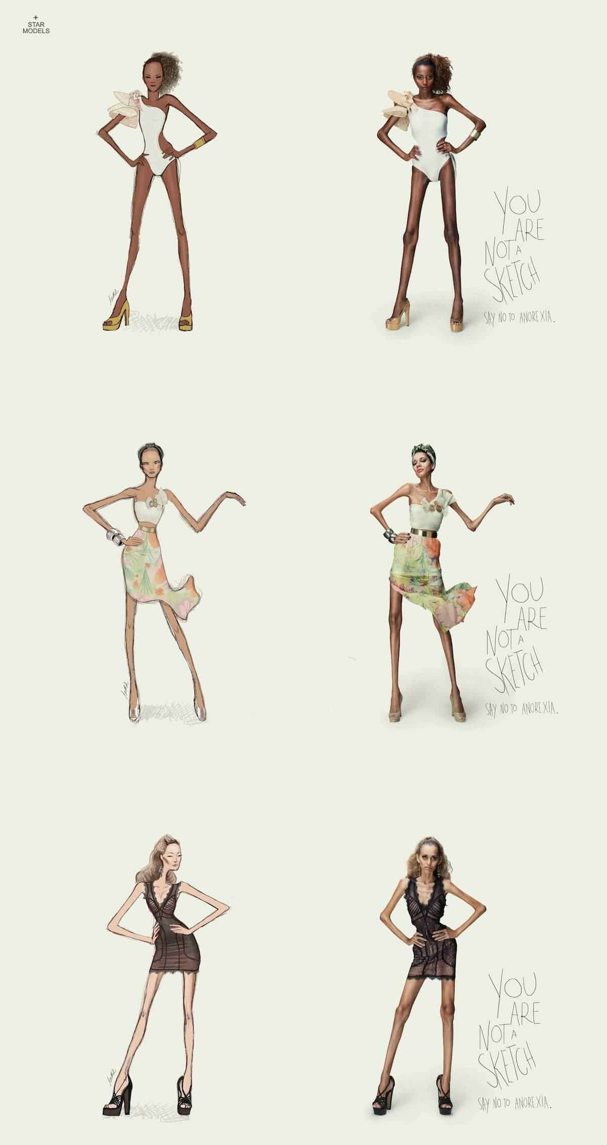Anorexia-kampania